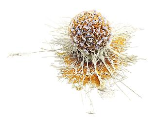 TGR cancer cell